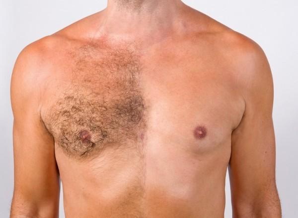 acne en el pecho y espalda