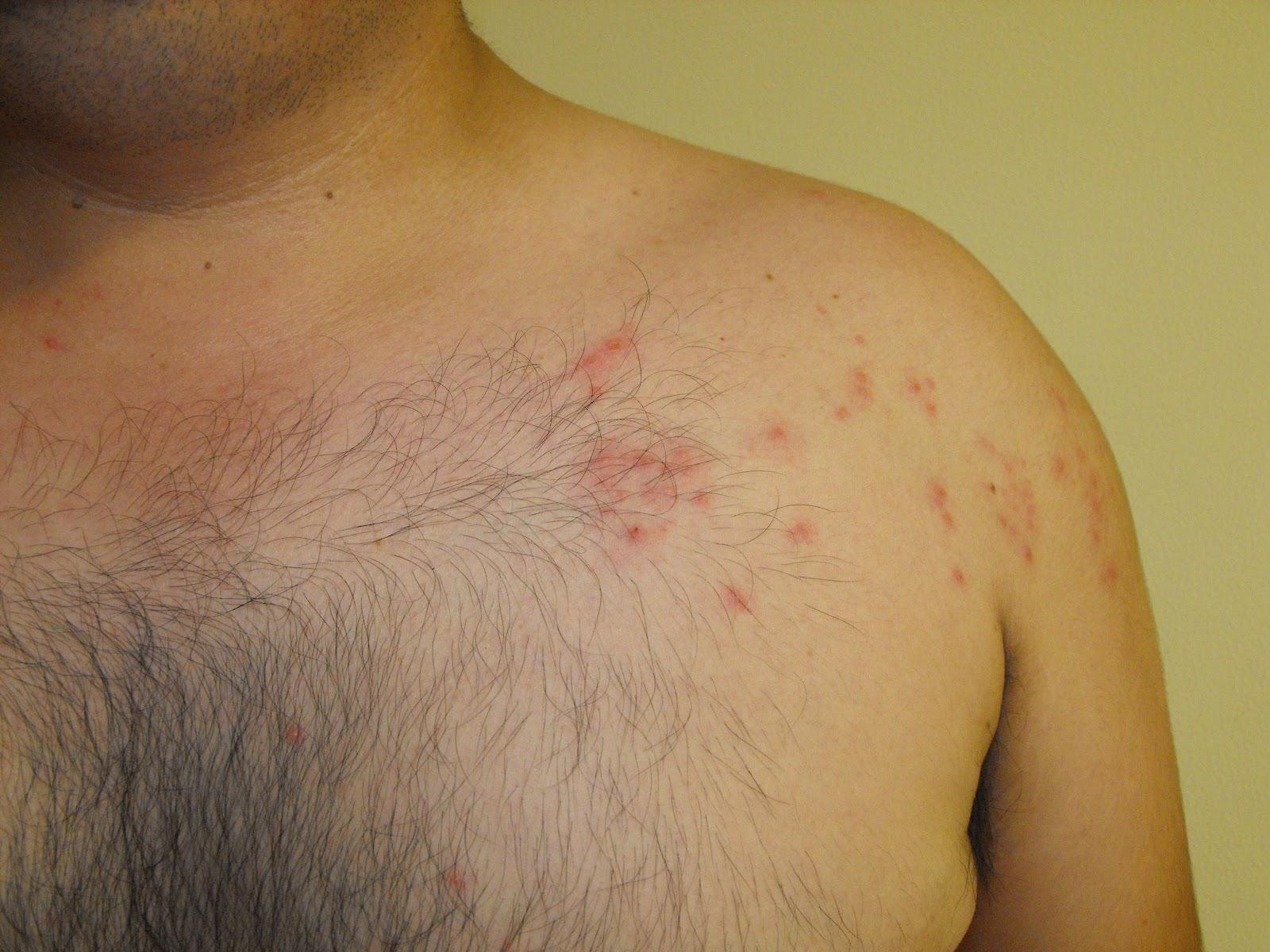 acne pecho