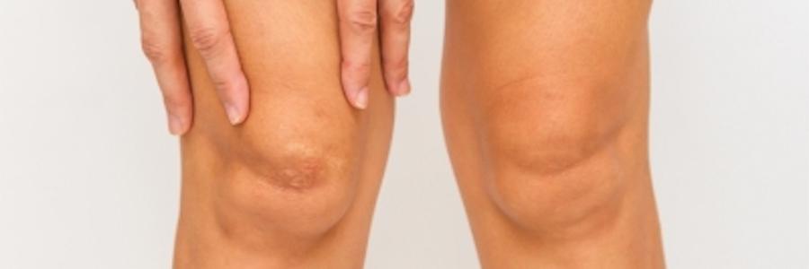 dolor en la parte posterior de la rodilla
