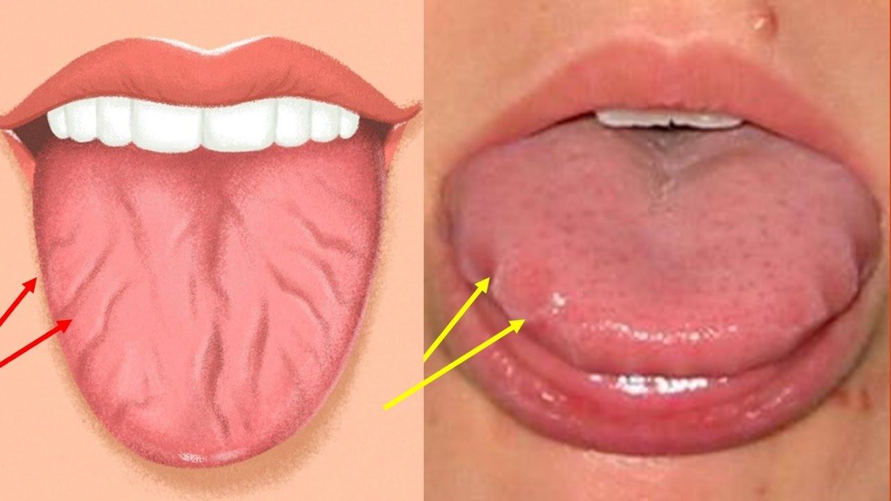 marcas de dientes en los laterales de la lengua