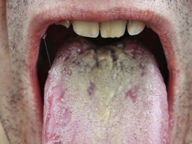 protuberancias blancas en la lengua