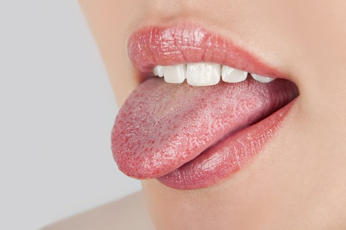 puntos blancos en la lengua